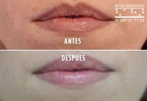 Acido Hialuronico Labios Antes y Despues Fotos