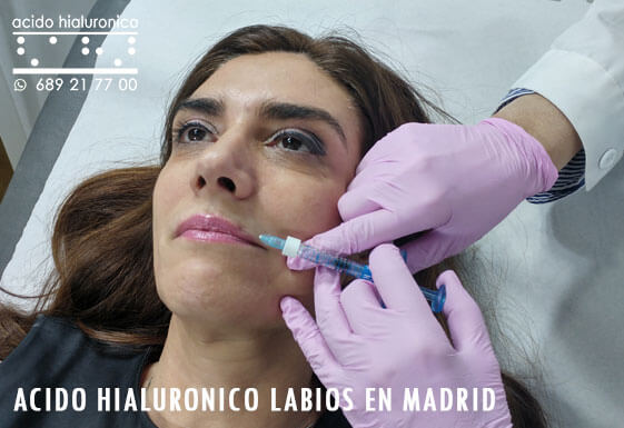 Acido Hialuronico Labios Madrid Centro