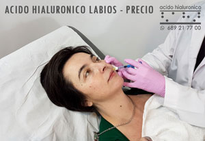 Acido Hialuronico Labios Precio Madrid