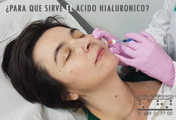 Para Que Sirve el Acido Hialuronico