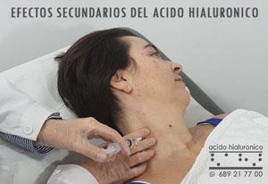 Acido Hialuronico Efectos Secundarios en labios, rodilla...