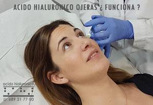 Acido Hialuronico Ojeras Madrid Centro