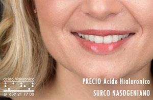 Precio Acido Hialuronico Surco Nasogeniano en Madrid Centro